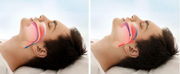 Opasan prekid disanja u snu