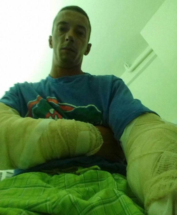 Kovač pokazuje povrede